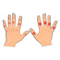 От какво боледуват ставите на пръстите?