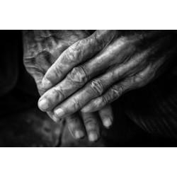 Артрит на пръстите на ръцете – ефективно народно лечение