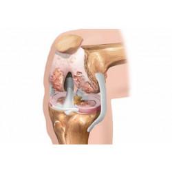 Причини за развитие и профилактика на артроза след 35-годишна възраст