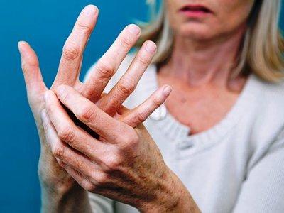 Артрит е възпалително заболяване на ставите, което провокира зачервяване на кожата около увредената става, промяна във формата на ставата и причинява скованост и болки в ставите