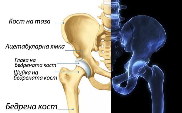 Болести, провокиращи болки в тазобедрената става