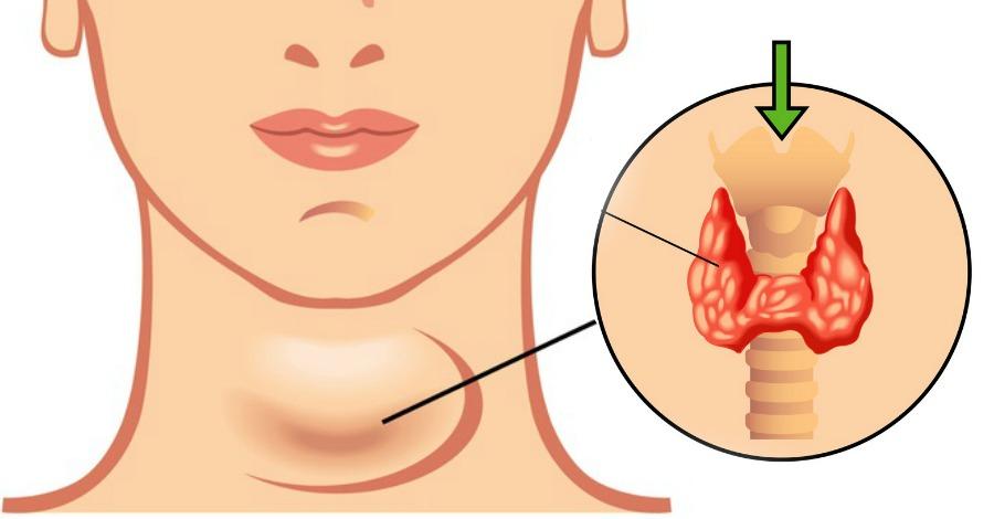 При хипертиреоза или болест на Грейвс може да възникне мускулна слабост и умора.