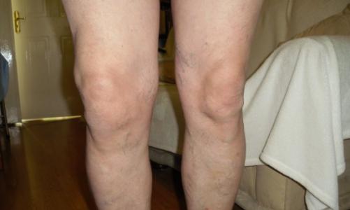 Какво представлява и как се лекува реактивен артрит на коляното?