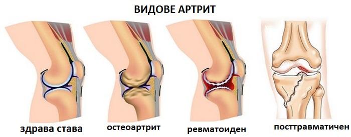 Лечение на ревматоиден артрит и облекчаване на болката в краката | Компетентно за здравето на Крем Move&Flex в България