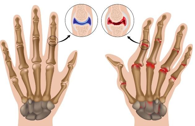 Инфекциозните заболявания на ставите и костите са различни - някои са по-безопасни, други са много сложни за лечение
