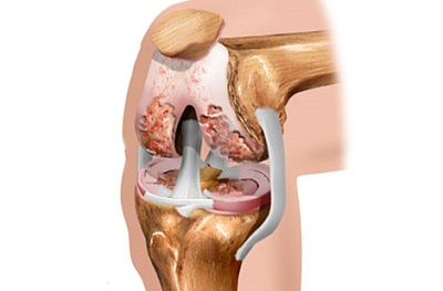 Диагностика на ювенилен хроничен артрит | Компетентно за здравето на Крем Move&Flex в България