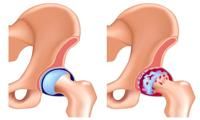 Артроза е заболяване на опорно-двигателния апарат, предизвикана от дефицит на калций