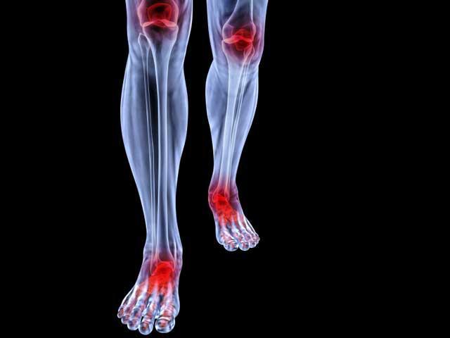 Калций поддържа здравето на костната система, участва в обмена на веществата и предпазва от осреоартроза