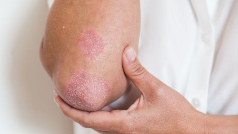 Псориазисът уврежда малките, а същo и големите стави - появяват се болки в кръста, кожни псориатични плаки, кожата променя цвета си на лилаво-син.