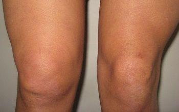 Реактивен артрит - възпалителната патология на ставите се проявява в долните крайници.