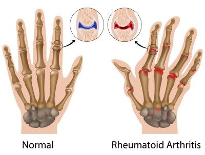 Възпалението и отокът на китките и глезените е признак за ревматоиден артрит.