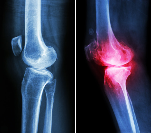 При остеоартроза - болест на ставите - трябва да се спазва специален хранителен режим