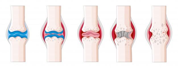 Стадиите на артрит са четири