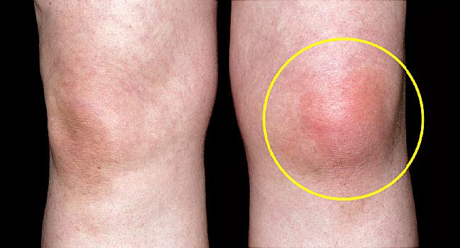 Лечение на течност в коляното