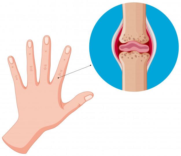 Артрит на ръцете и пръстите: лечение с народни средства | Болки в ставите