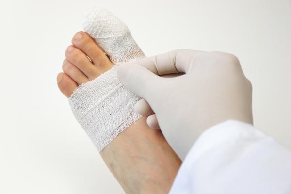 Леден компрес на крака, разтривки и болкоуспокояващи при нараняване на пръста.