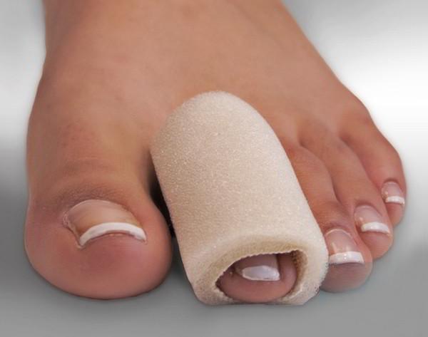 При контузия на пръстите на краката се правят ледени компреси, компрес от билки.