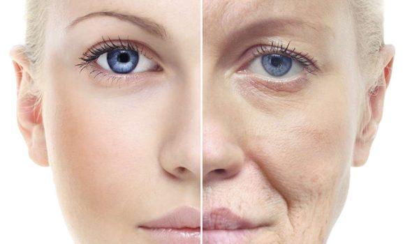 С възрастта недостигът на колаген допринася за сухота на кожата, поява на бръчки и става причина за загуба на нейната еластичност.
