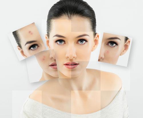 Типове 1 и 3 могат да бъдат комбинирани заедно и могат да поддържат кожата, мускулите, здравето на костите, растежа и поддържането на косата и ноктите.
